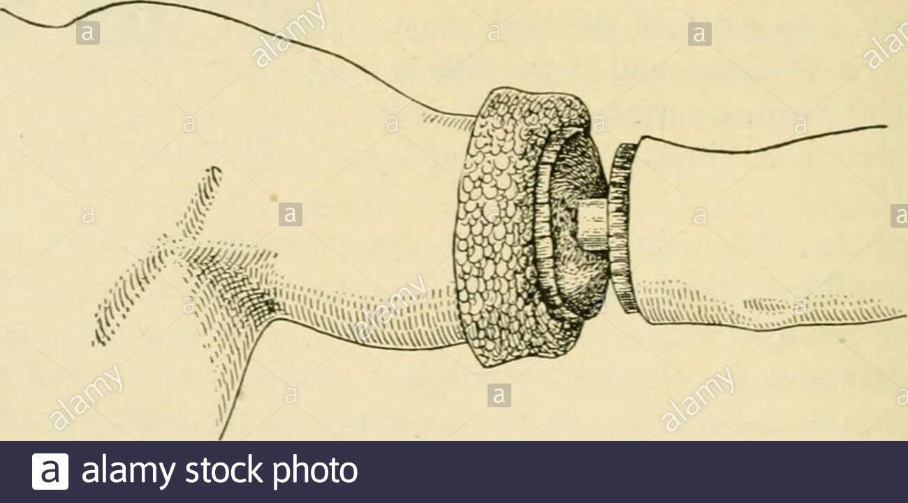 handbuch der operativen chirurgie zoll abb 1411 t ser ebene bilden eine kreisformige incisionthrough alle verbleibenden weiche teile bis auf knochen j n jackson besteht darauf dass es besser tiefen faszie in den ersten schnitt zu stechen und mit thesuperficial strukturen aus den muskeln zu reflektieren der autor stimmt mit ihm in sem asder resultierende stumpf ist ausgezeichnet schritt 2 a einer kreisformigen schnitt durch knochenhaut an der einlassoffnungauffullen muskulos wunde reflektieren knochenhaut vom knochen fur ca 3 ich zoll nach oben und divi ren sie knochen auf ser ebene einen langen ovalen anteriorperiosteal fla 2afrk0g